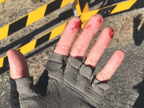 指先を負傷