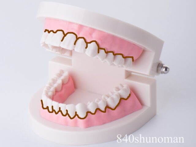 歯垢が驚くほどよく取れる!